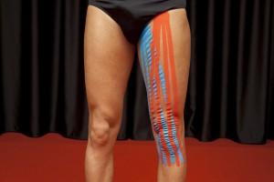 Applicazione del tape sulla coscia, Taping Elastico